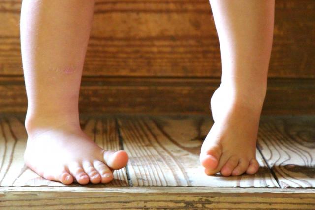 外反母趾を改善するためのテーピングのやり方